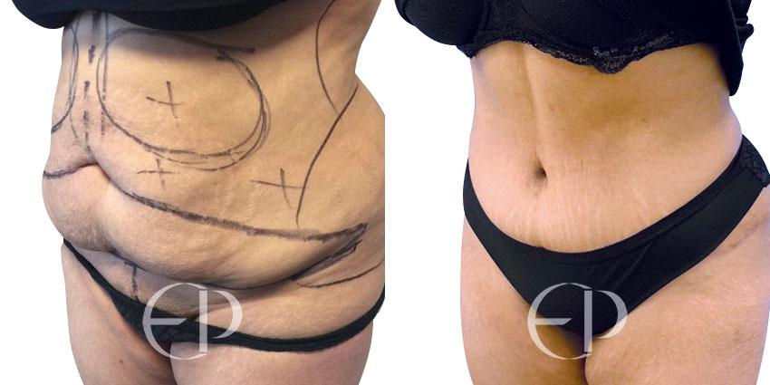 cirugia barriga mallorca