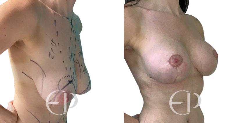 elevacion senos mallorca
