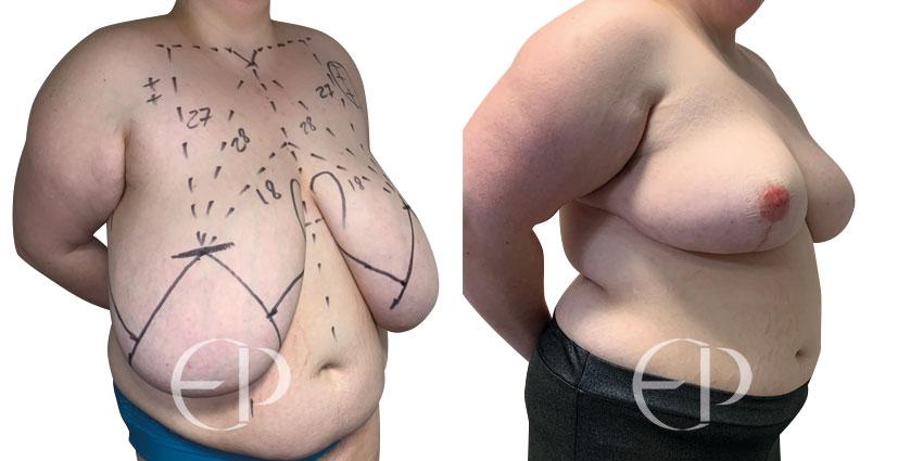 reduccion pechos mallorca