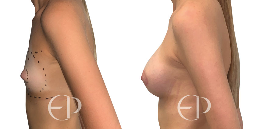 asimetria pechos mallorca