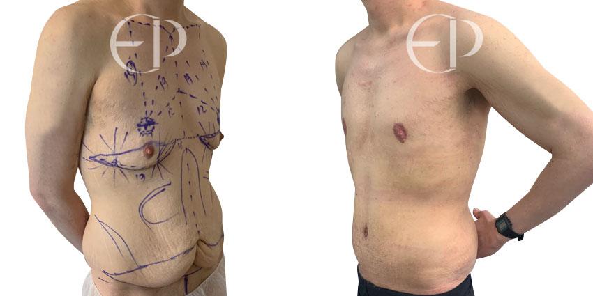 cirugia mamaria masculina mallorca