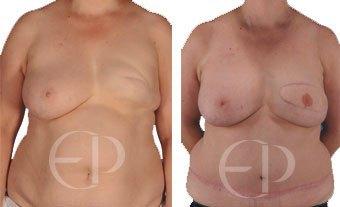 reconstrucion mamaria mallorca