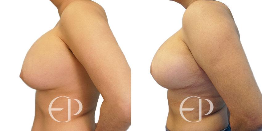 sustitucion implantes mallorca